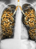 10 Countries With the Highest Rates of Lung Cancer in the World